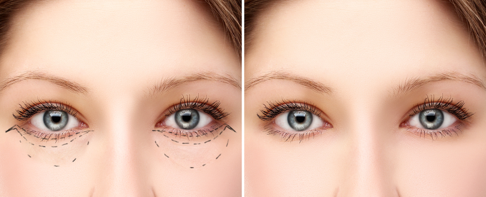 Greater Boston Plastic Surgery best place for eyelid blepharoplasty surgery by skilled surgeon Dr Noury