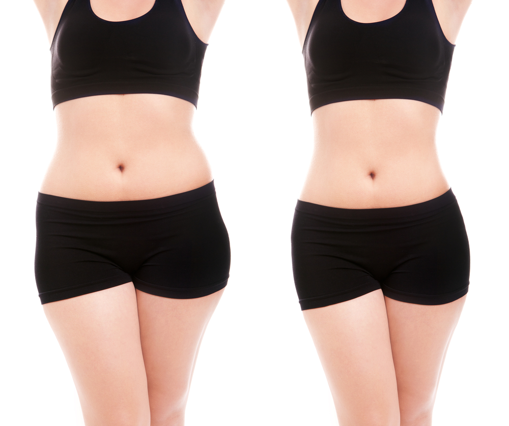 Greater Boston Plastic Surgery best surgeon for liposuction