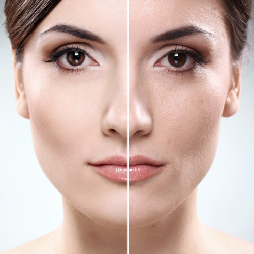 Greater Boston Plastic Surgery performs TCA Facial Peels